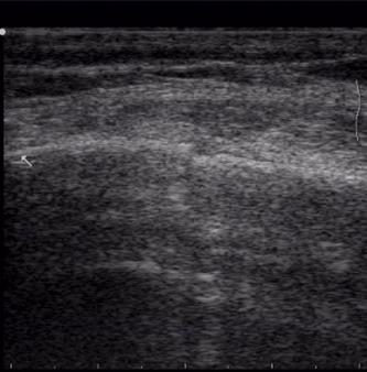 Ultraschalluntersuchung der Rippen nach Sturz
