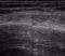Sonografie der Rippen-Fraktur, Versagen des Röntgen