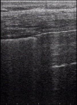 Pleurasonography - thoracic ultrasound