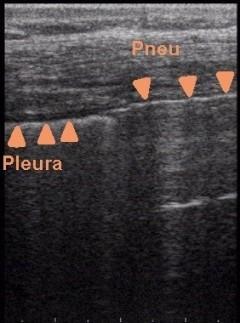 Pneumothorax im Ultraschall