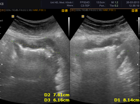Metastase of a Merkel-cell-carcinoma of the Ileum, ultrasonography