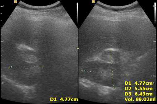 progredient adrenal adenoma in ultrasonography