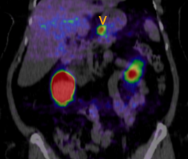 Exendin-4 FDG-PET/CT in Insulinoma