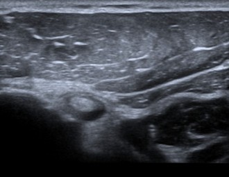 side effects of ultrasonography