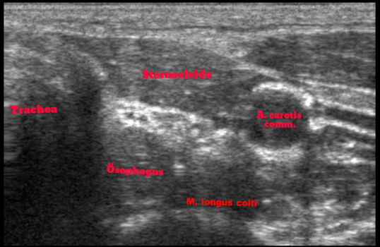 Thyroidal agenesia in ultrasound imaging